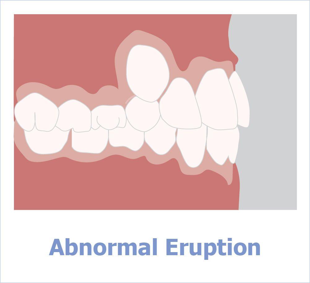 Zahnausbruch an falschen Stellen im Zahnbogen