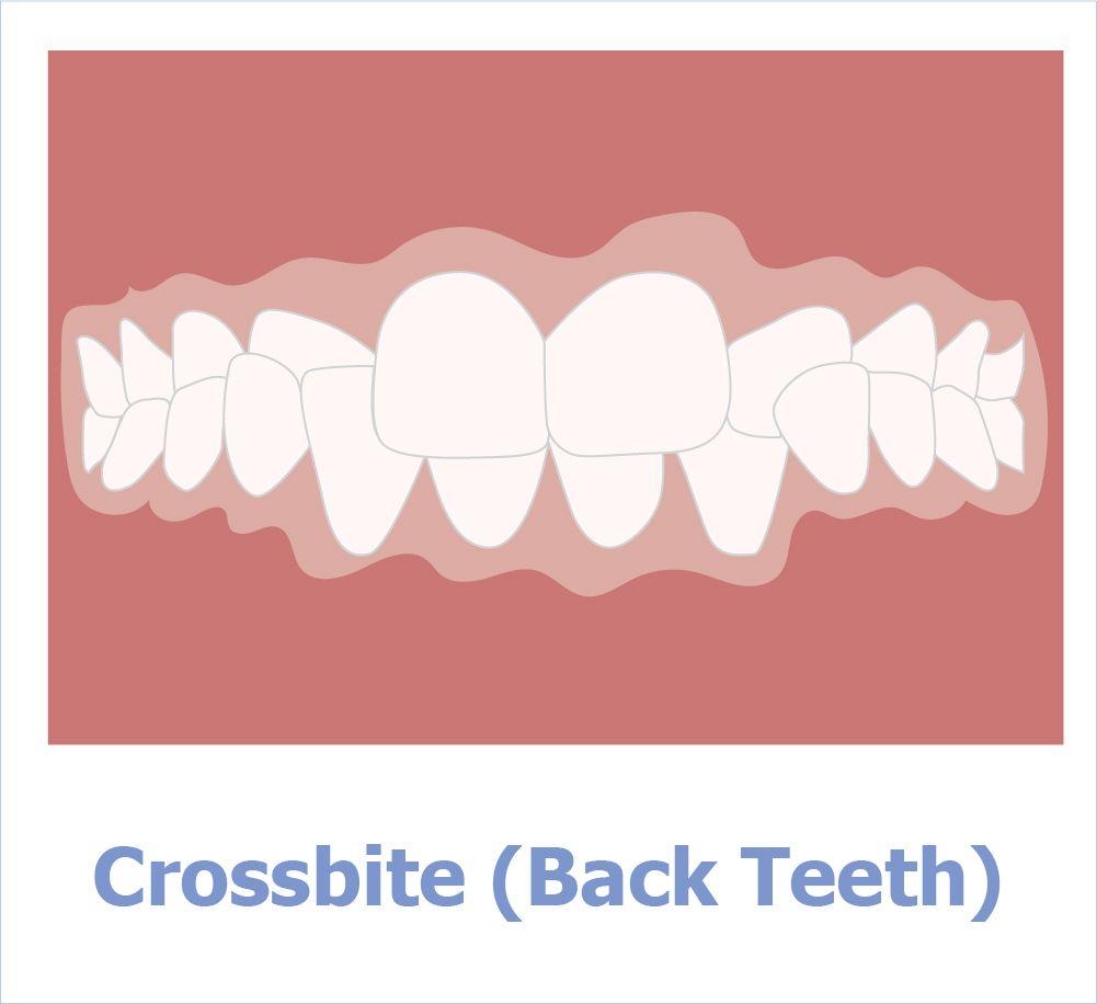 Kreuzbiss der hinteren Zähne