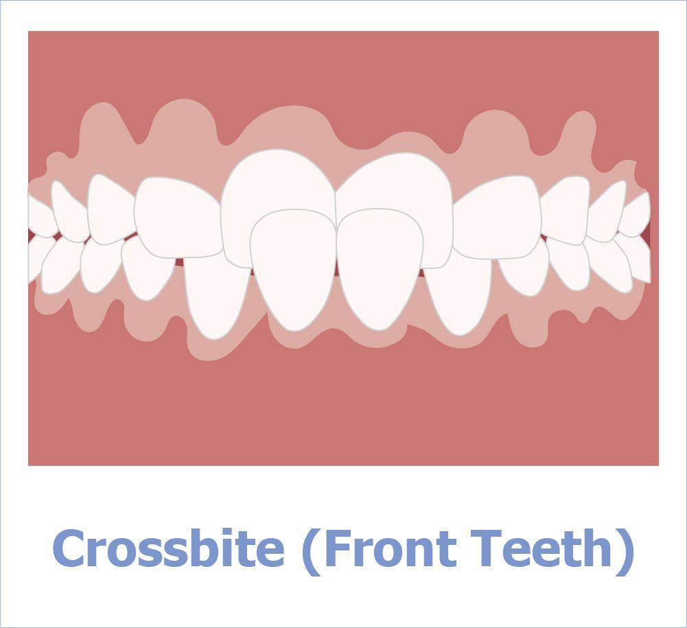 Kreuzbiss der Vorder- oder Hinterzähne