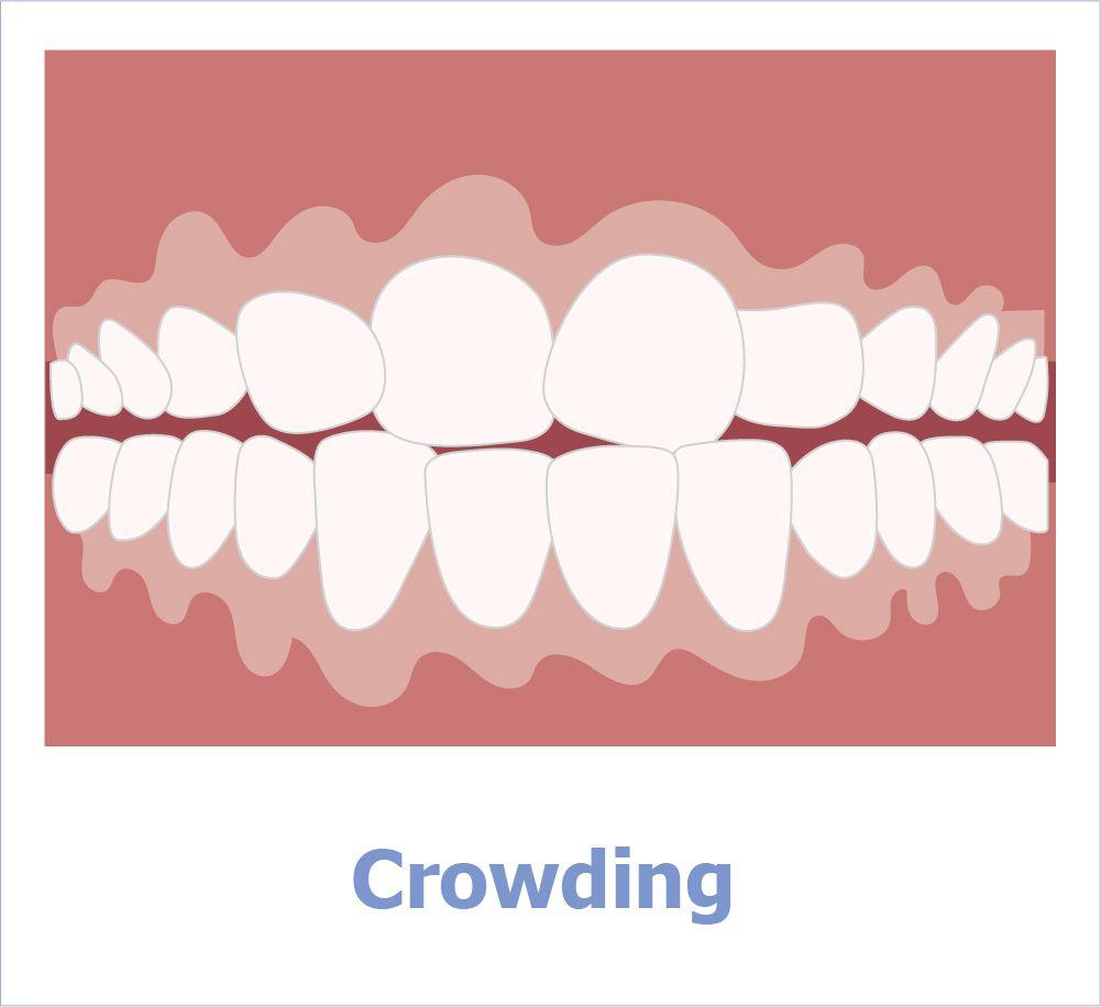 Zähne im Engstand