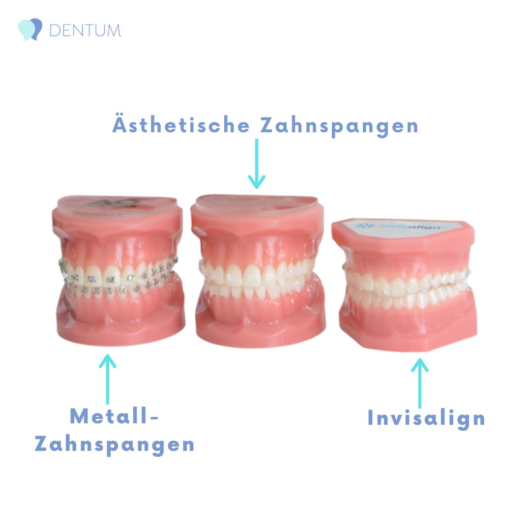 Invisalign-, Metall- und ästhetische Zahnspangen